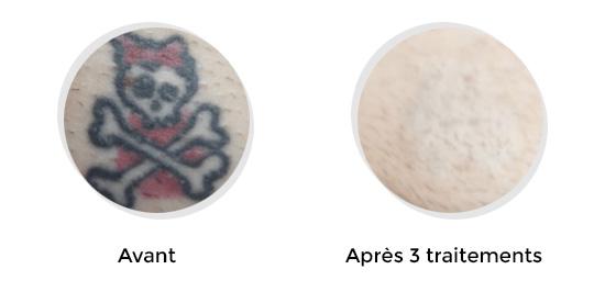avant-apres-02
