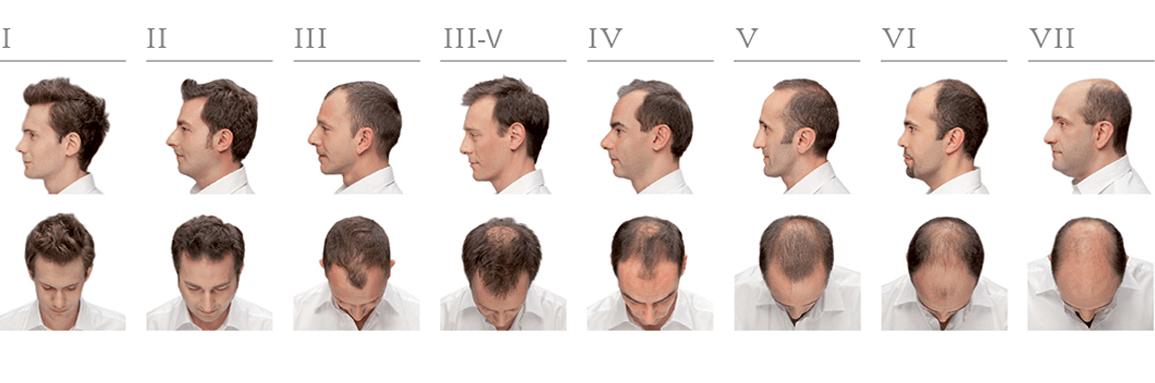 hamilton-norwood-greffe-cheveux
