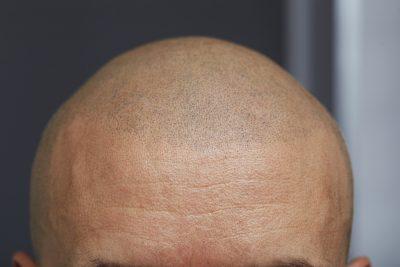 Tricopigmentation Greg Hairmicro Bordeaux